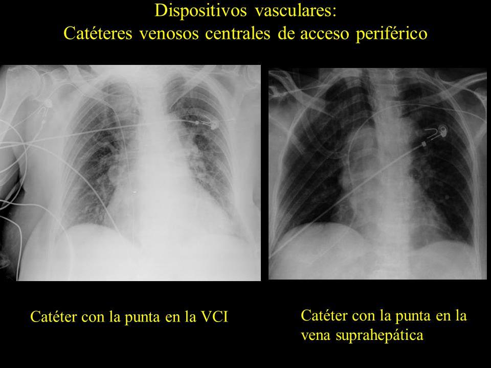 Catéter con la punta en la VCI Dispositivos vasculares: Catéteres venosos centrales de acceso periférico Catéter con la punta en la vena suprahepática