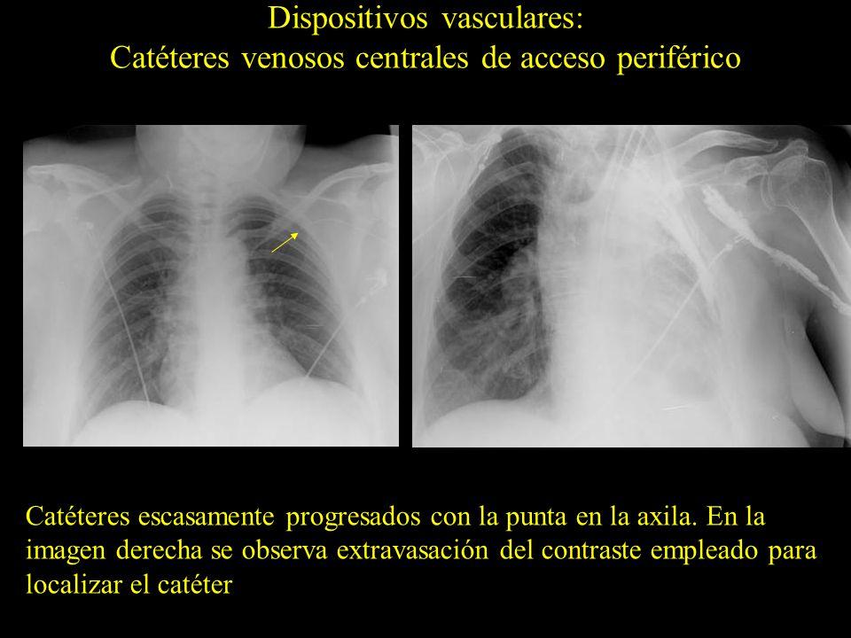 Posición errónea en la vena frenopericárdica Dispositivos vasculares: Catéteres venosos centrales de acceso periférico