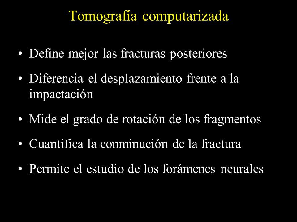 Tomografía computarizada Define mejor las fracturas posteriores Diferencia el desplazamiento frente a la impactación Mide el grado de rotación de los