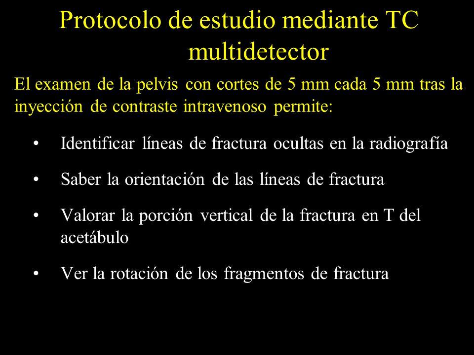 Protocolo de estudio mediante TC multidetector Diagnosticar y clasificar las fracturas de acetábulo Identificar los fragmentos intrarticulares Reconocer los fragmentos marginales impactados Demostrar el grado de conminución de la fractura Conocer la posición de la cabeza femoral El examen de la pelvis con cortes de 5 mm cada 5 mm tras la inyección de contraste intravenoso permite: