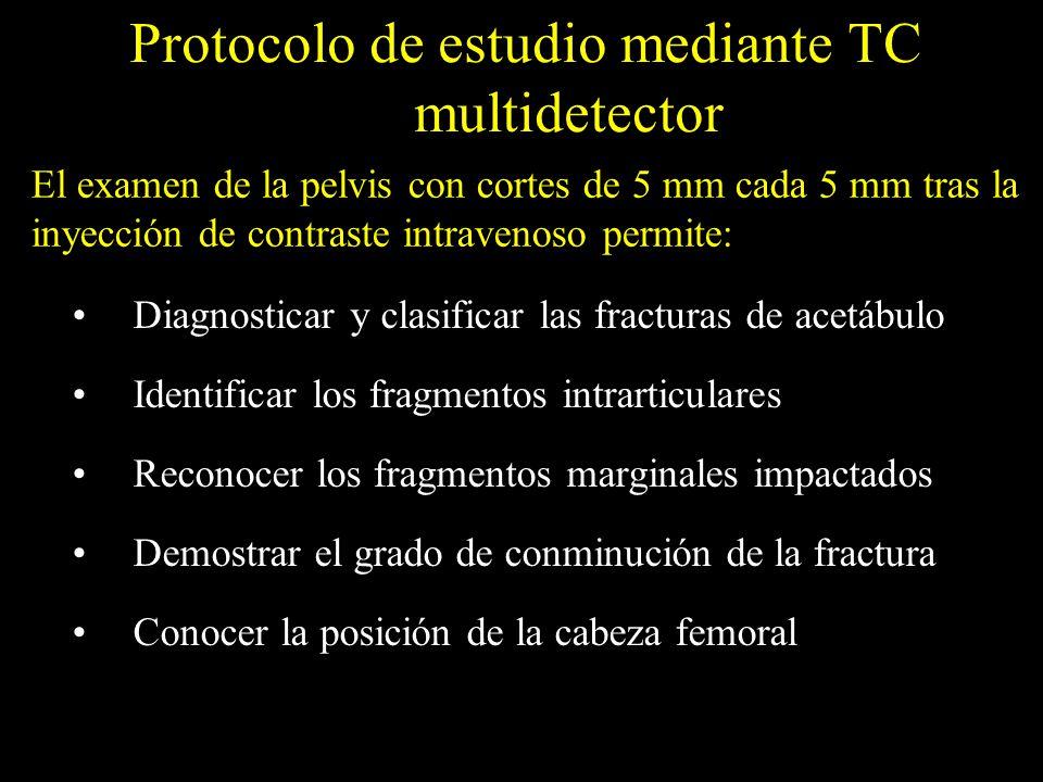 Protocolo de estudio mediante TC multidetector Diagnosticar y clasificar las fracturas de acetábulo Identificar los fragmentos intrarticulares Reconoc