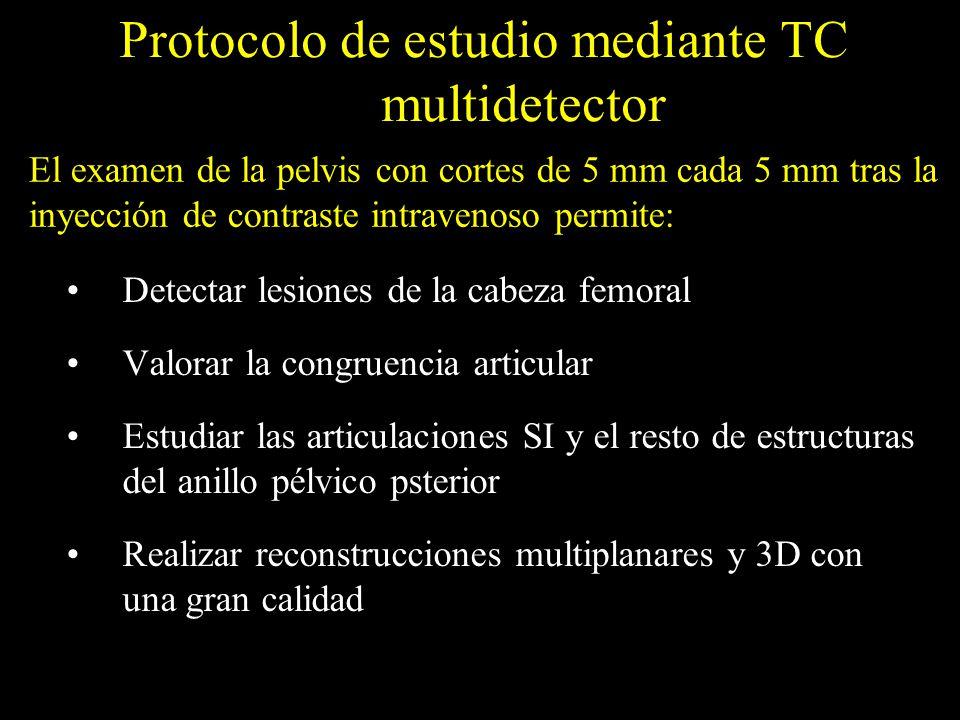 Protocolo de estudio mediante TC multidetector Detectar lesiones de la cabeza femoral Valorar la congruencia articular Estudiar las articulaciones SI