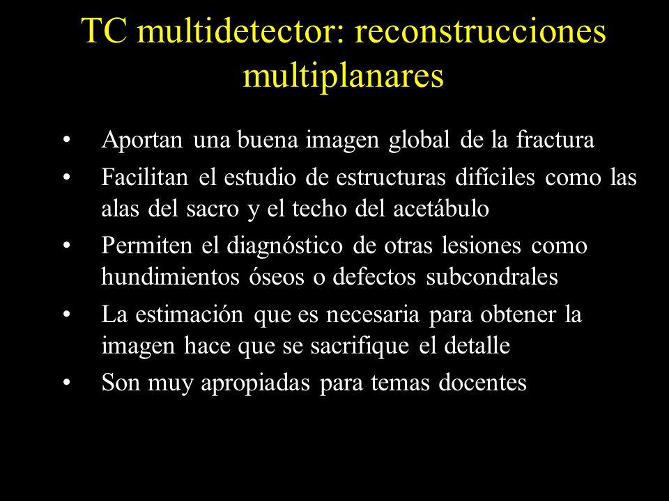TC multidetector: reconstrucciones 3D Se obtienen gracias a la conversión de los datos de los cortes en 2D La calidad de la imagen está determinada por el tipo de software Muestran la configuración anatómica real de la pelvis Permiten la sustracción de elementos como el fémur Permiten rotar la pelvis Toda la información está en el estudio de TC en 2D