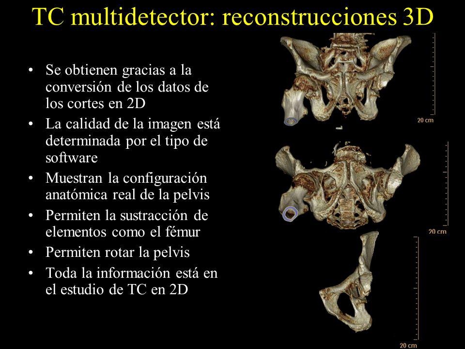 TC multidetector: reconstrucciones 3D Se obtienen gracias a la conversión de los datos de los cortes en 2D La calidad de la imagen está determinada po