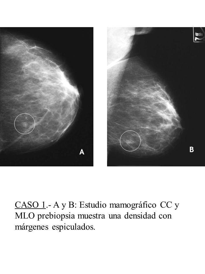 A B C D E CASO 1.- A y B: Estudio mamográfico CC y MLO prebiopsia muestra una densidad con márgenes espiculados.