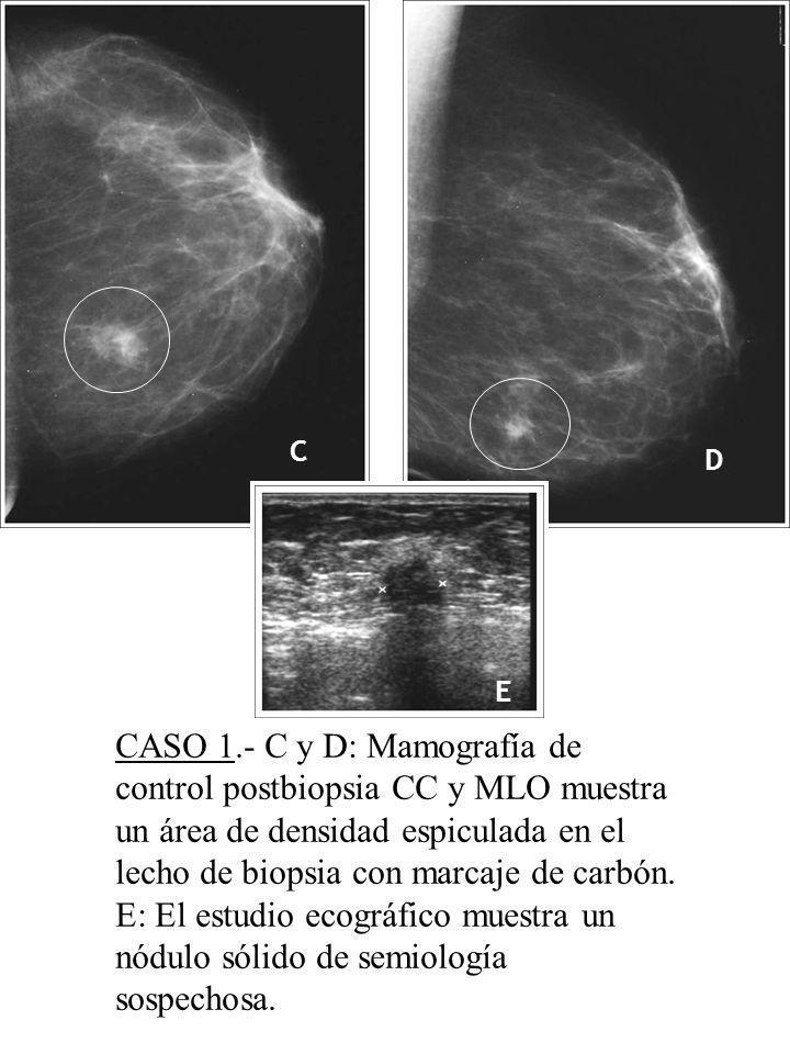 C D E CASO 1.- C y D: Mamografía de control postbiopsia CC y MLO muestra un área de densidad espiculada en el lecho de biopsia con marcaje de carbón.