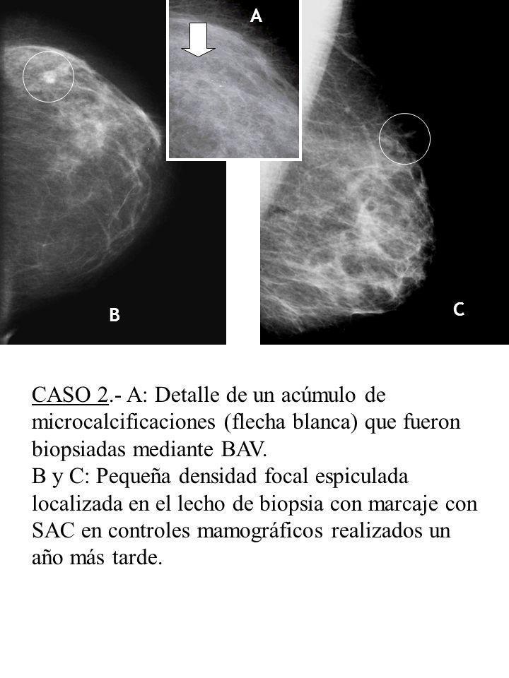 A B C D E CASO 2.- A: Detalle de un acúmulo de microcalcificaciones (flecha blanca) que fueron biopsiadas mediante BAV. B y C: Pequeña densidad focal