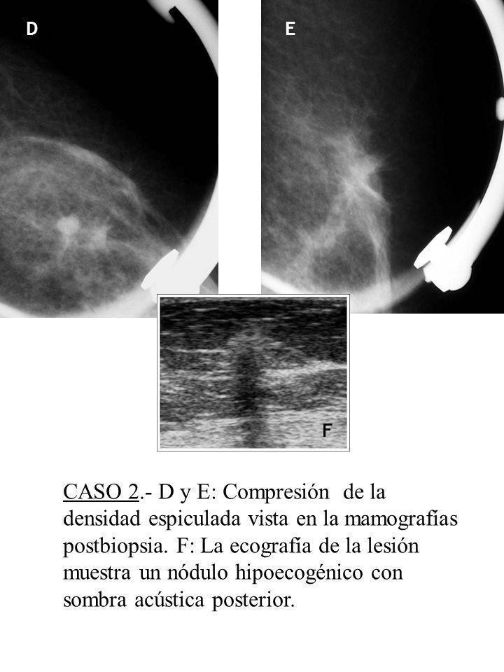 D D E F D CASO 2.- D y E: Compresión de la densidad espiculada vista en la mamografías postbiopsia. F: La ecografía de la lesión muestra un nódulo hip