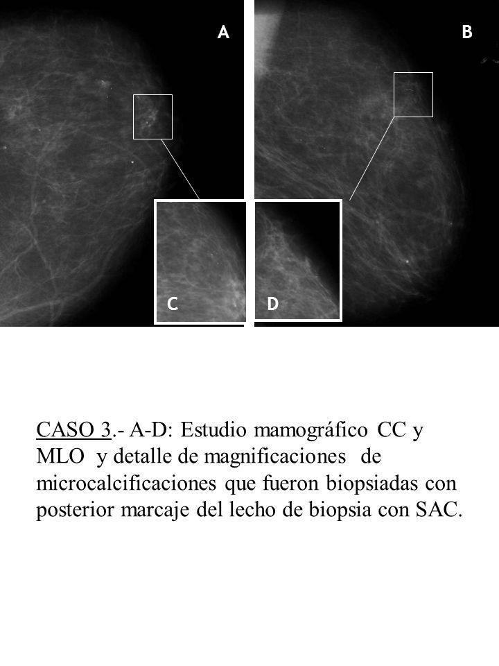 AB CD E F CASO 3.- A-D: Estudio mamográfico CC y MLO y detalle de magnificaciones de microcalcificaciones que fueron biopsiadas con posterior marcaje del lecho de biopsia con SAC.