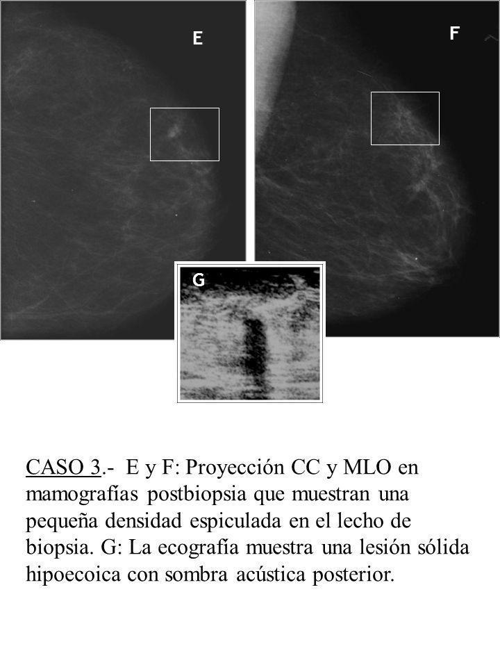 CASO 3.- E y F: Proyección CC y MLO en mamografías postbiopsia que muestran una pequeña densidad espiculada en el lecho de biopsia. G: La ecografía mu
