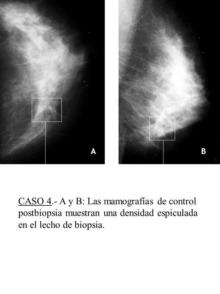 AB C ED CASO 4.- A y B: Las mamografías de control postbiopsia muestran una densidad espiculada en el lecho de biopsia.