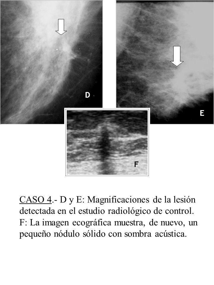 D E F CASO 4.- D y E: Magnificaciones de la lesión detectada en el estudio radiológico de control. F: La imagen ecográfica muestra, de nuevo, un peque