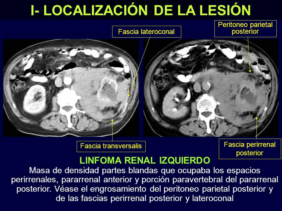 LINFOMA RENAL IZQUIERDO Masa de densidad partes blandas que ocupaba los espacios perirrenales, pararrenal anterior y porción paravertebral del pararrenal posterior.