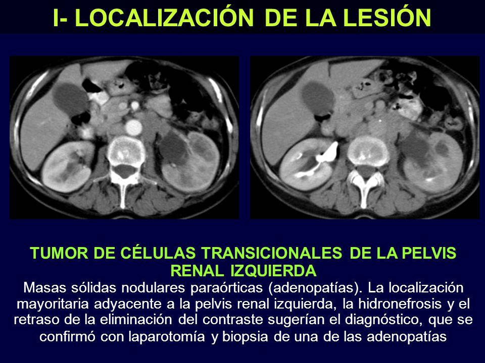 TUMOR DE CÉLULAS TRANSICIONALES DE LA PELVIS RENAL IZQUIERDA Masas sólidas nodulares paraórticas (adenopatías).