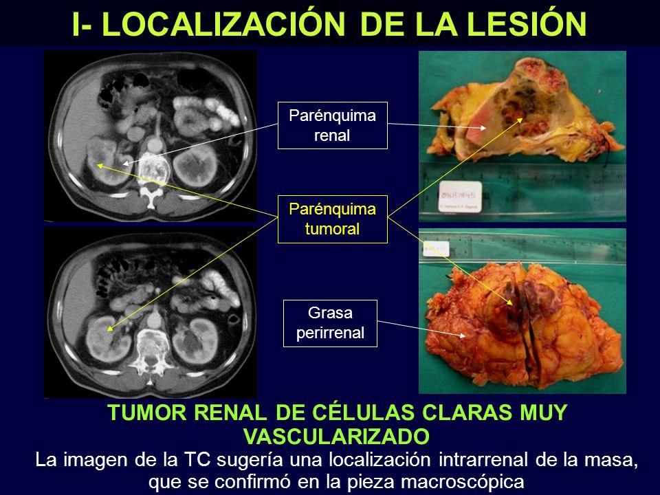 TUMOR RENAL DE CÉLULAS CLARAS MUY VASCULARIZADO La imagen de la TC sugería una localización intrarrenal de la masa, que se confirmó en la pieza macroscópica I- LOCALIZACIÓN DE LA LESIÓN Parénquima renal Parénquima tumoral Grasa perirrenal