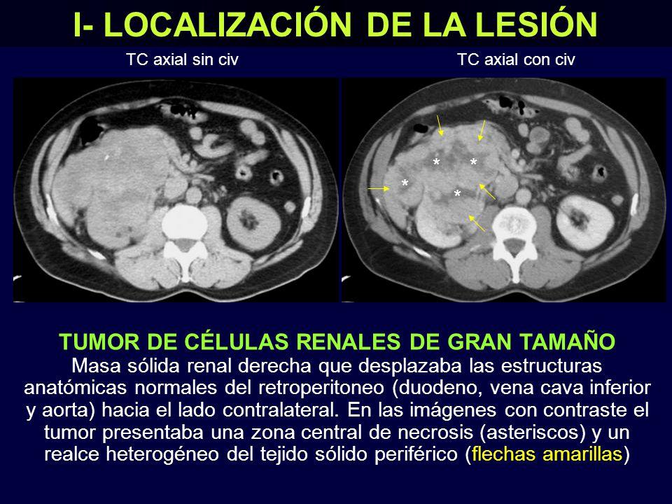TUMOR DE CÉLULAS RENALES DE GRAN TAMAÑO Masa sólida renal derecha que desplazaba las estructuras anatómicas normales del retroperitoneo (duodeno, vena cava inferior y aorta) hacia el lado contralateral.
