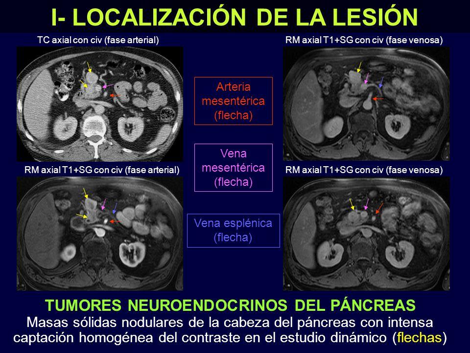 TUMORES NEUROENDOCRINOS DEL PÁNCREAS Masas sólidas nodulares de la cabeza del páncreas con intensa captación homogénea del contraste en el estudio dinámico (flechas) I- LOCALIZACIÓN DE LA LESIÓN TC axial con civ (fase arterial) RM axial T1+SG con civ (fase arterial) RM axial T1+SG con civ (fase venosa) Vena mesentérica (flecha) Vena esplénica (flecha) Arteria mesentérica (flecha)