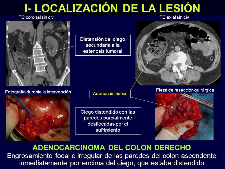 ADENOCARCINOMA DEL COLON DERECHO Engrosamiento focal e irregular de las paredes del colon ascendente inmediatamente por encima del ciego, que estaba distendido I- LOCALIZACIÓN DE LA LESIÓN Pieza de resección quirúrgica Fotografía durante la intervención TC coronal sin civTC axial sin civ Ciego distendido con las paredes parcialmente desflecadas por el sufrimiento Adenocarcinoma Distensión del ciego secundaria a la estenosis tumoral