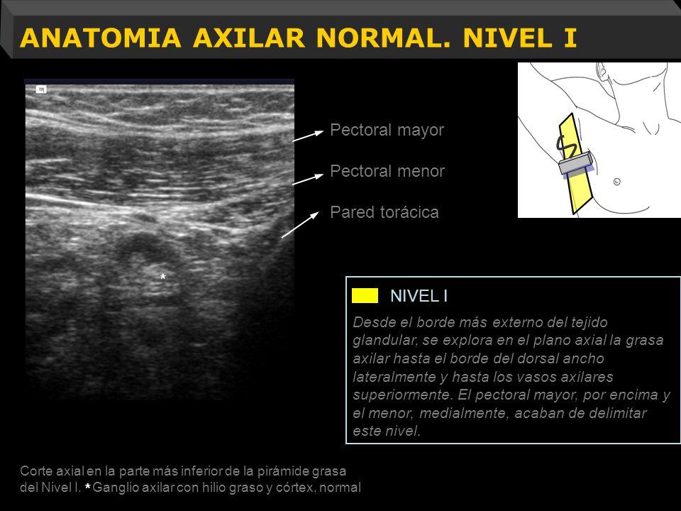 ANATOMIA AXILAR NORMAL. NIVEL I Resección músculo pectoral menor Pectoral mayor Pectoral menor Pared torácica Corte axial en la parte más inferior de