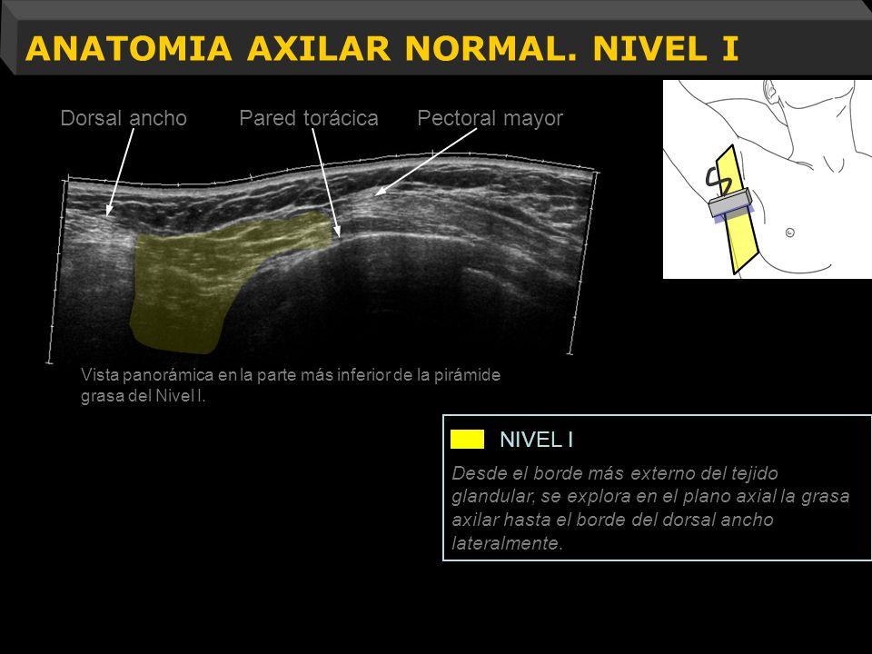 ANATOMIA AXILAR NORMAL. NIVEL I Vista panorámica en la parte más inferior de la pirámide grasa del Nivel I. Desde el borde más externo del tejido glan