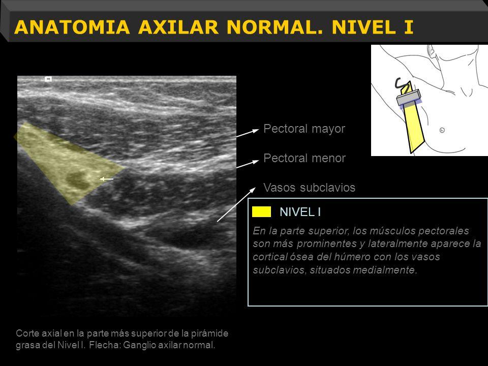 ANATOMIA AXILAR NORMAL. NIVEL I Resección músculo pectoral menor Pectoral mayor Pectoral menor Vasos subclavios Corte axial en la parte más superior d