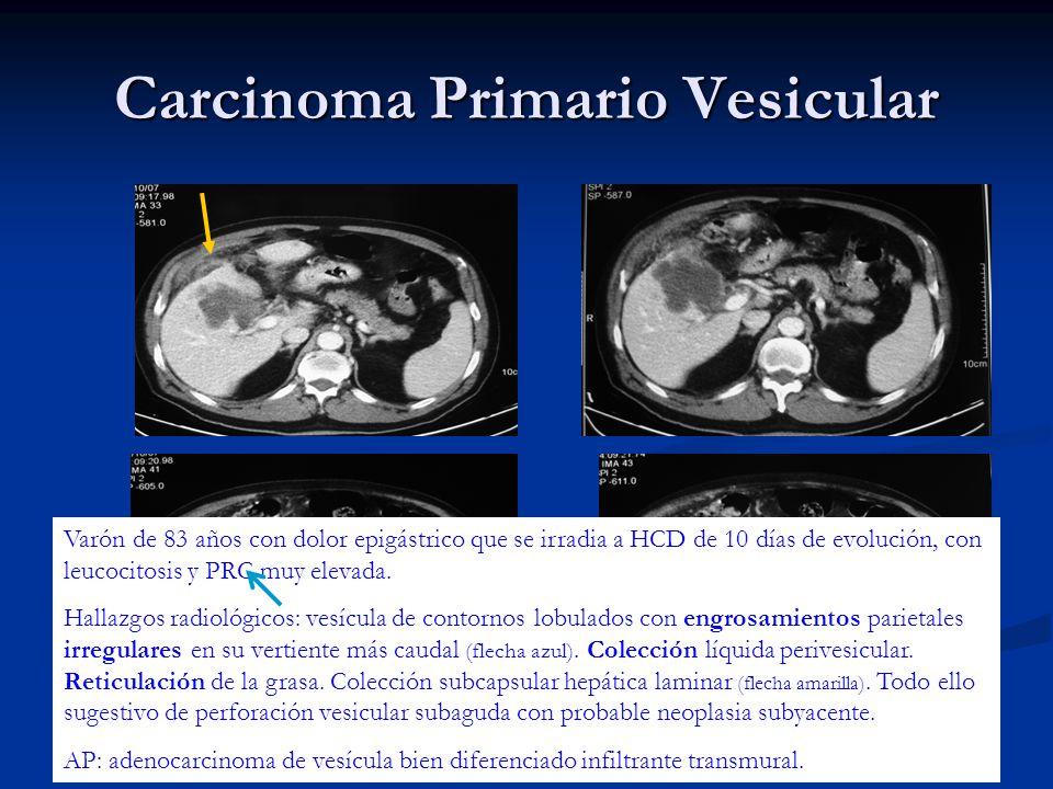 Carcinoma Primario Vesicular Varón de 83 años con dolor epigástrico que se irradia a HCD de 10 días de evolución, con leucocitosis y PRC muy elevada.