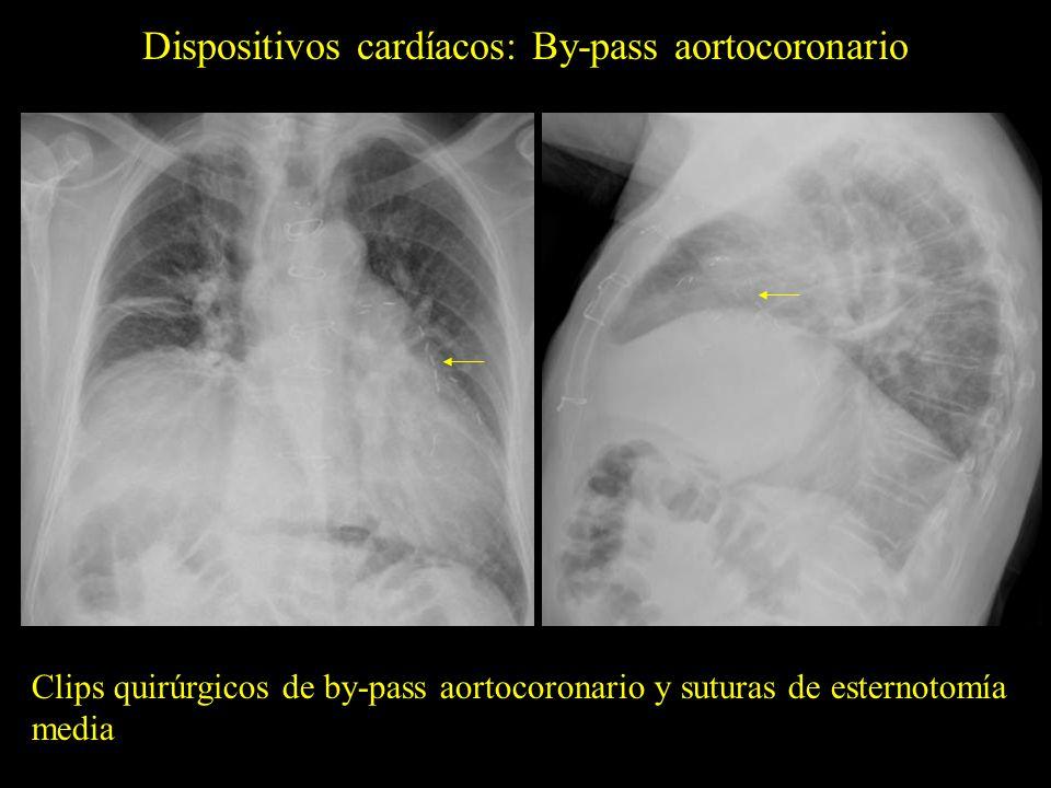 Dispositivos cardíacos: Stents coronarios Stent en la arteria coronaria descendente anterior (flechas).