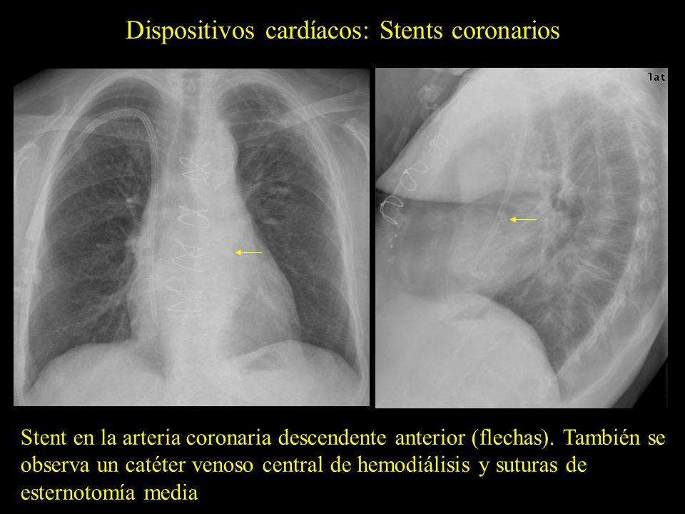 Dispositivos cardíacos: Stents coronarios Stent en la arteria coronaria descendente anterior (flechas). También se observa un catéter venoso central d