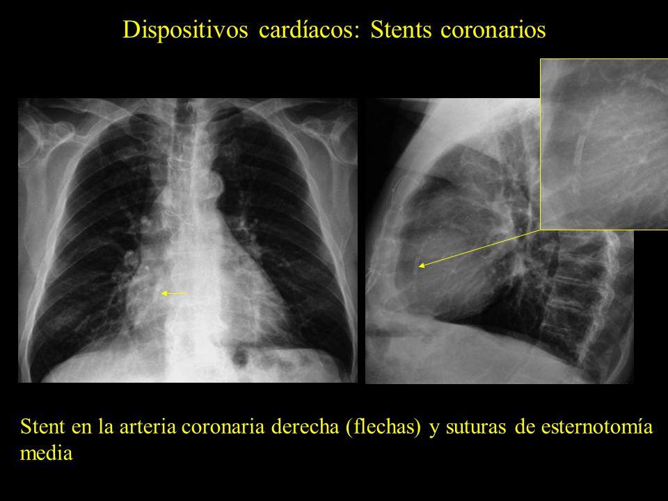 Dispositivos cardíacos: Drenaje mediastínico Catéter de drenaje mediastínico (flechas amarillas) tras una gastrectomía.