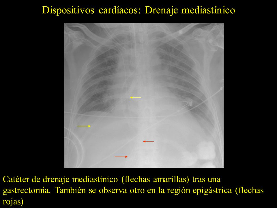 Dispositivos cardíacos: Drenaje mediastínico Catéter de drenaje mediastínico (flechas amarillas) tras una gastrectomía. También se observa otro en la