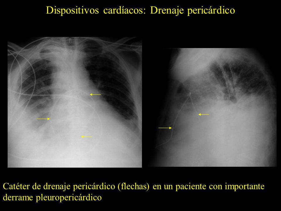 Dispositivos cardíacos: Drenaje pericárdico Tubo de drenaje pericárdico (flechas) y suturas (asteriscos) en un paciente con importante derrame pleuropericárdico tras cirugía gástrica * *