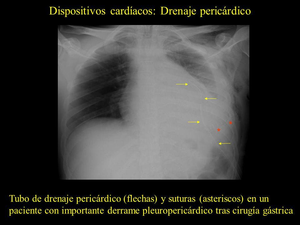 Dispositivos cardíacos: Drenaje pericárdico Tubo de drenaje pericárdico (flechas) y suturas (asteriscos) en un paciente con importante derrame pleurop