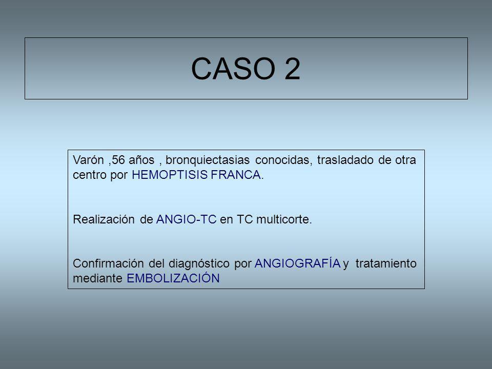 CASO 2 Varón,56 años, bronquiectasias conocidas, trasladado de otra centro por HEMOPTISIS FRANCA. Realización de ANGIO-TC en TC multicorte. Confirmaci