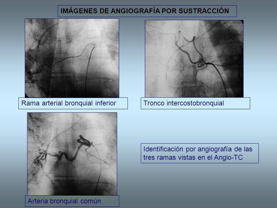 IMÁGENES DE ANGIOGRAFÍA POR SUSTRACCIÓN Rama arterial bronquial inferiorTronco intercostobronquial Arteria bronquial común Identificación por angiogra