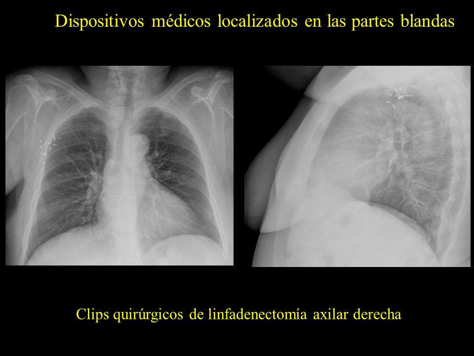 Dispositivos médicos localizados en las partes blandas Clips quirúrgicos de linfadenectomía axilar derecha