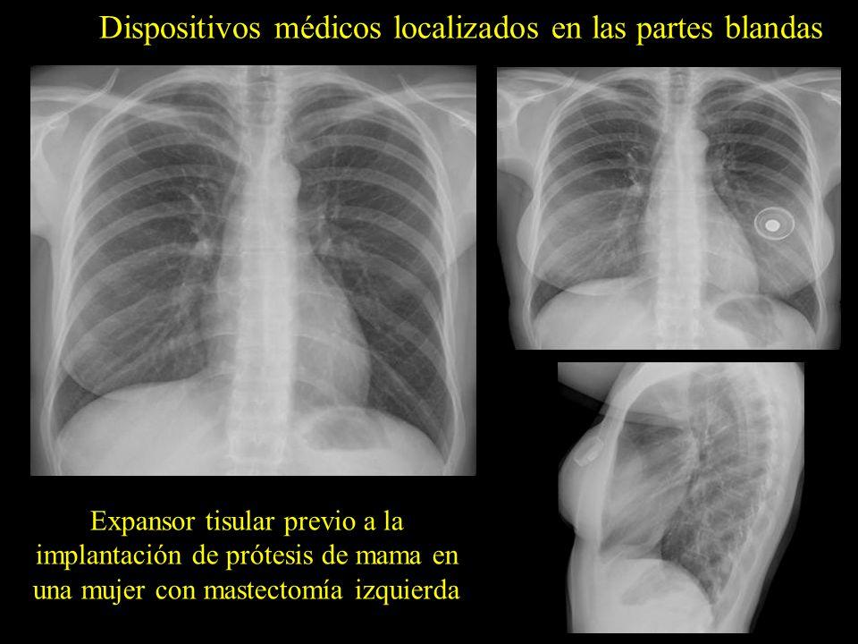 Dispositivos médicos localizados en las partes blandas Expansor tisular previo a la implantación de prótesis de mama en una mujer con mastectomía izqu