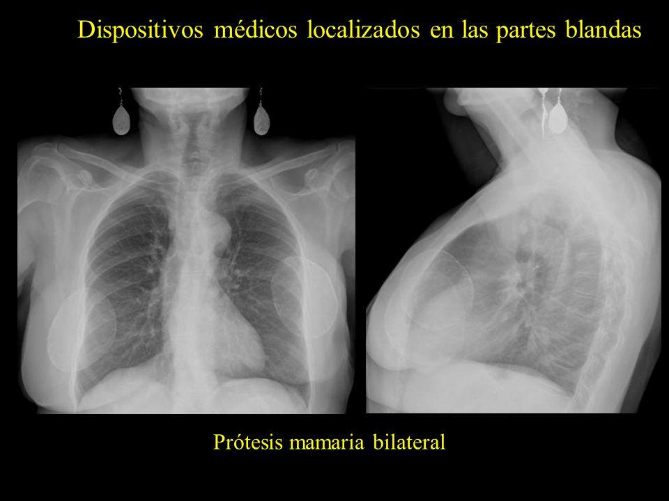 Dispositivos médicos localizados en las partes blandas Prótesis mamaria bilateral