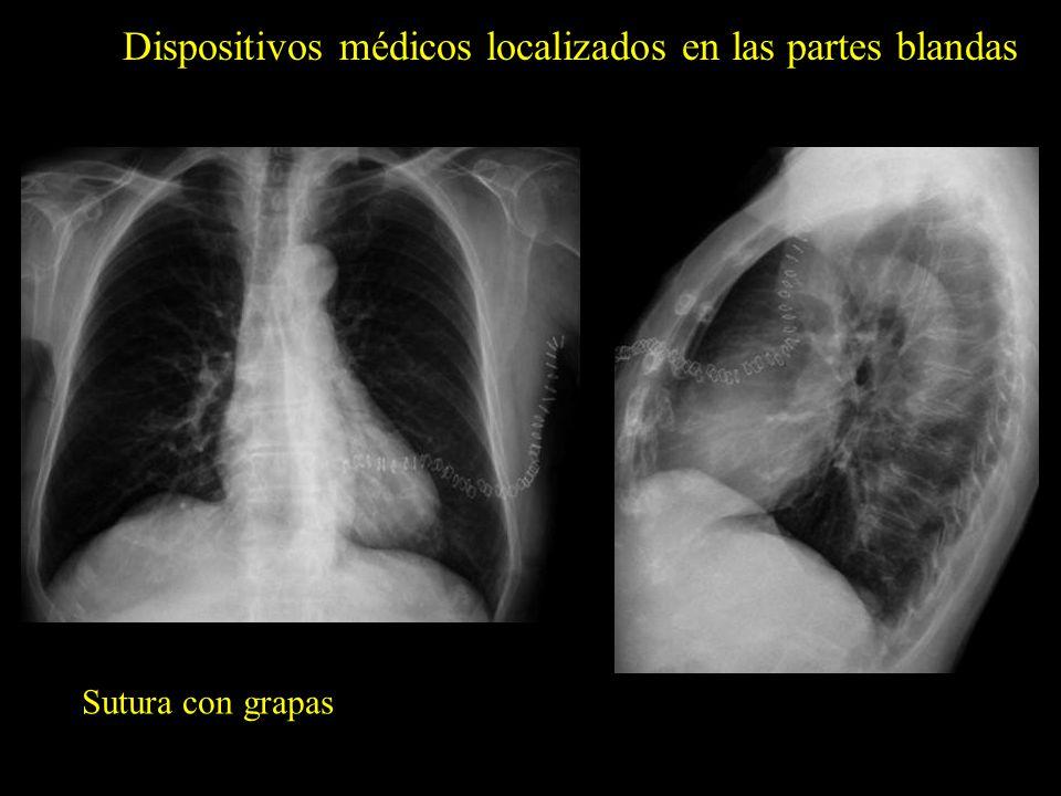 Dispositivos médicos localizados en las partes blandas Sutura con grapas