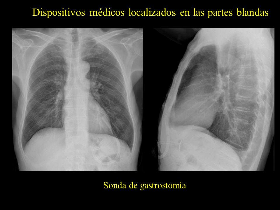 Dispositivos médicos localizados en las partes blandas Sonda de gastrostomía