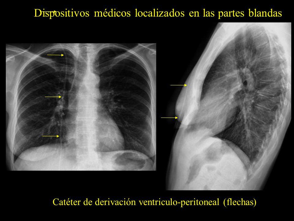 Dispositivos médicos localizados en las partes blandas Catéter de derivación ventriculo-peritoneal (flechas)