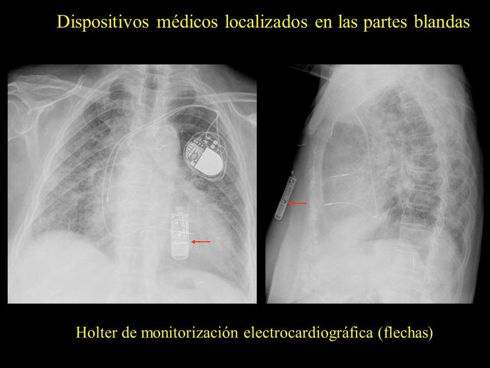 Dispositivos médicos localizados en las partes blandas Holter de monitorización electrocardiográfica (flechas)