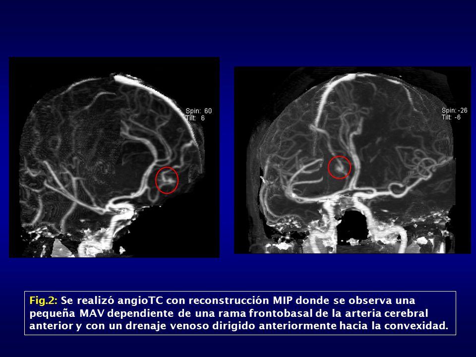 Fig.2: Se realizó angioTC con reconstrucción MIP donde se observa una pequeña MAV dependiente de una rama frontobasal de la arteria cerebral anterior y con un drenaje venoso dirigido anteriormente hacia la convexidad.