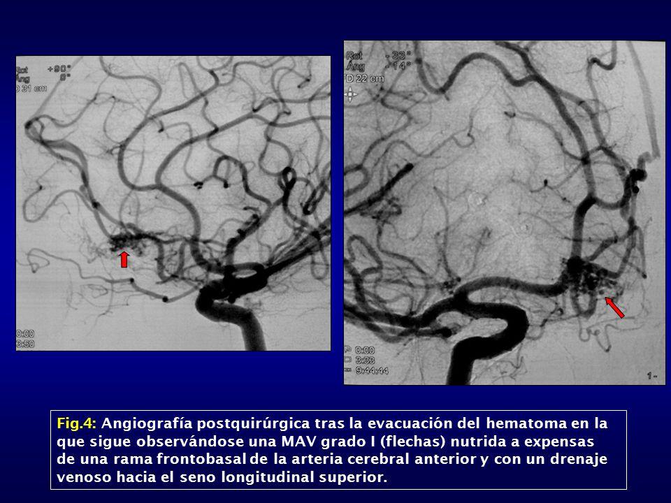 Fig.4: Angiografía postquirúrgica tras la evacuación del hematoma en la que sigue observándose una MAV grado I (flechas) nutrida a expensas de una rama frontobasal de la arteria cerebral anterior y con un drenaje venoso hacia el seno longitudinal superior.