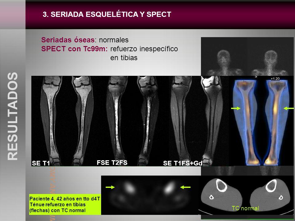 3. SERIADA ESQUELÉTICA Y SPECT RESULTADOS Seriadas óseas: normales SPECT con Tc99m: refuerzo inespecífico en tibias Paciente 4, 42 años en tto d4T Tén