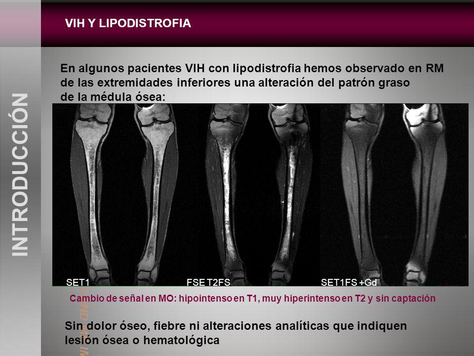 VIH Y LIPODISTROFIA INTRODUCCIÓN En algunos pacientes VIH con lipodistrofia hemos observado en RM de las extremidades inferiores una alteración del pa