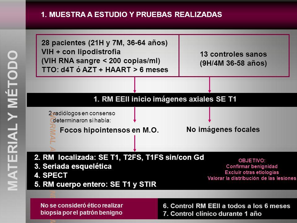 1. MUESTRA A ESTUDIO Y PRUEBAS REALIZADAS MATERIAL Y MÉTODO 28 pacientes (21H y 7M, 36-64 años) VIH + con lipodistrofia (VIH RNA sangre < 200 copias/m