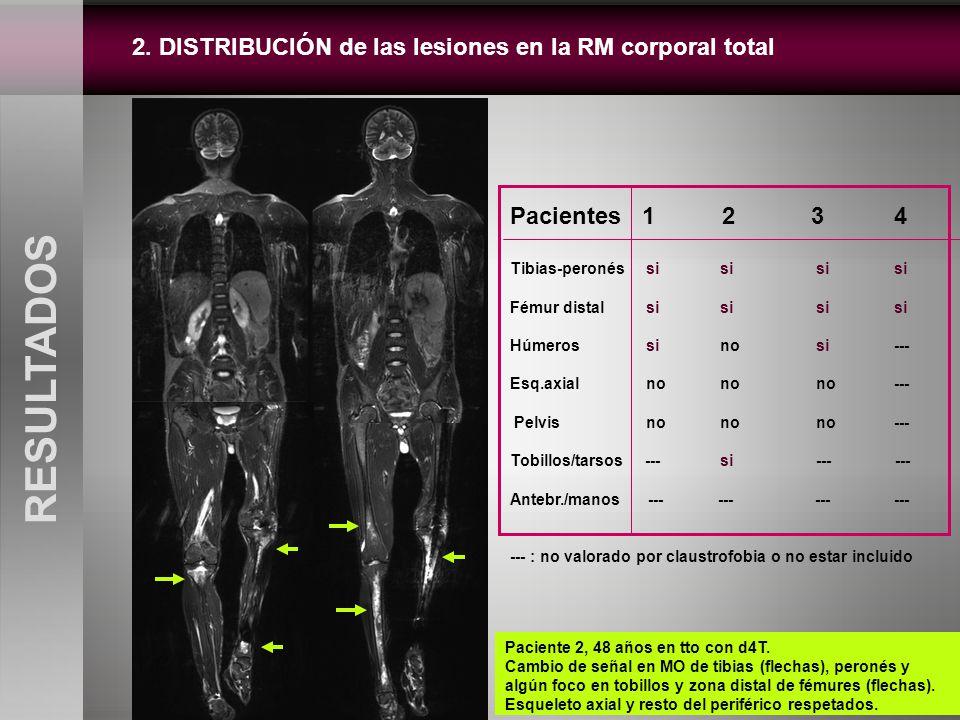 2. DISTRIBUCIÓN de las lesiones en la RM corporal total RESULTADOS Pacientes 1 2 34 Tibias-peronés si si sisi Fémur distal si si sisi Húmeros si no si