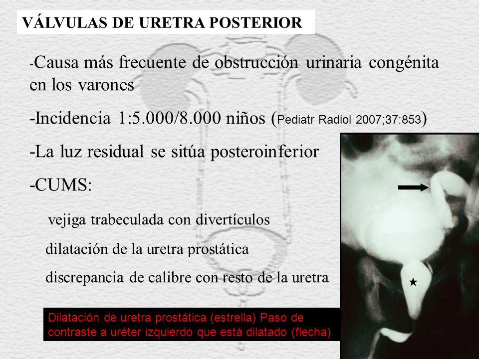 VÁLVULAS DE URETRA POSTERIOR - Causa más frecuente de obstrucción urinaria congénita en los varones -Incidencia 1:5.000/8.000 niños ( Pediatr Radiol 2007;37:853 ) -La luz residual se sitúa posteroinferior -CUMS: vejiga trabeculada con divertículos dilatación de la uretra prostática discrepancia de calibre con resto de la uretra Dilatación de uretra prostática (estrella) Paso de contraste a uréter izquierdo que está dilatado (flecha)