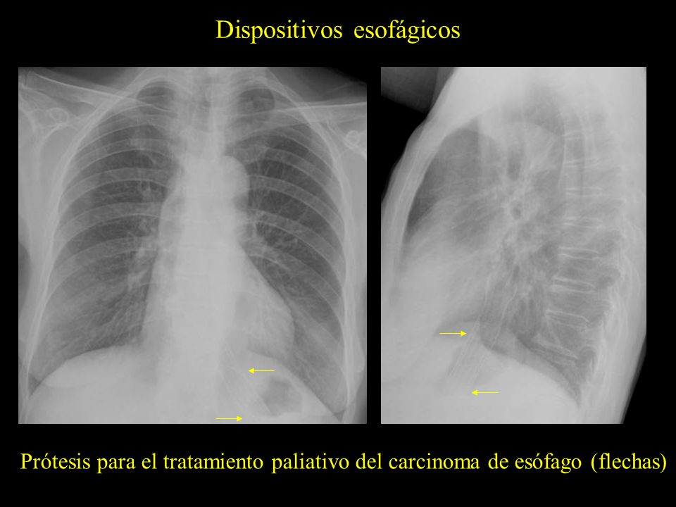 Dispositivos esofágicos Prótesis para el tratamiento paliativo del carcinoma de esófago (flechas)