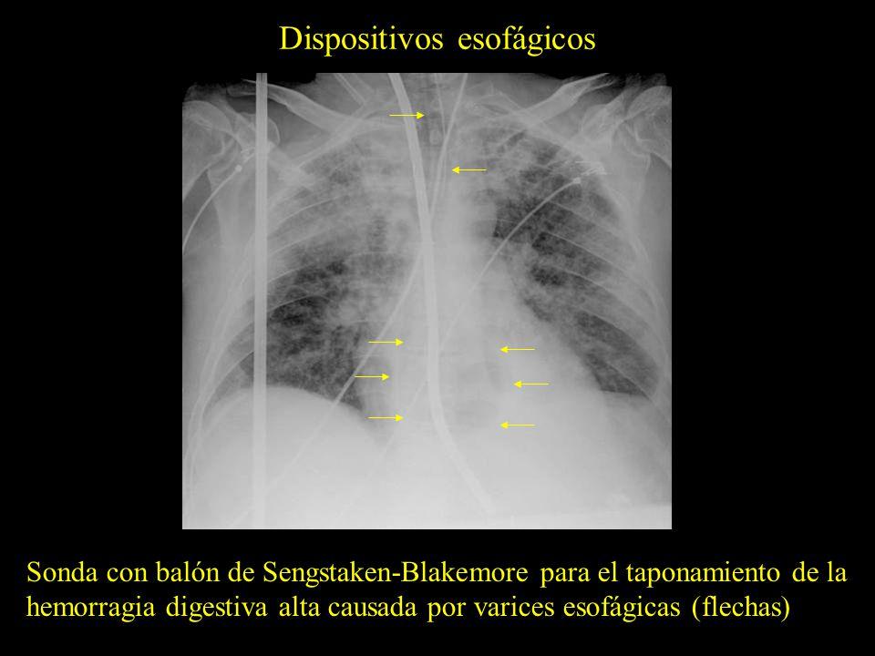 Dispositivos esofágicos Sonda nasogástrica en posición correcta con el extremo distal en la cámara gástrica Sonda nasogástrica acodada y con el extremo distal en posición incorrecta (esófago proximal)